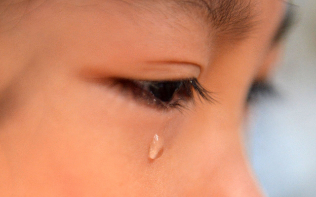 涙が多い状態